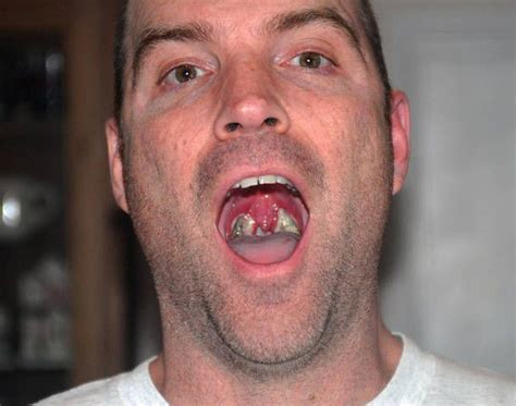 How to Tell the Difference between Tonsil Stones and