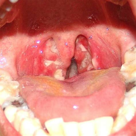 Pictures of Acute Follicular Streptococcal Tonsillitis