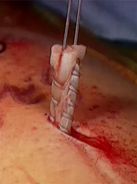 Failure of Biceps Tenodesis With Interference Screw